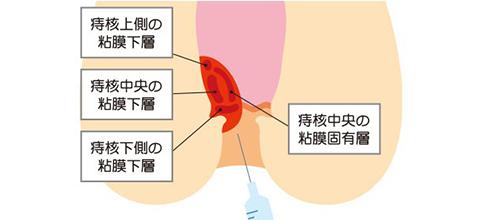 手術不要!切らずに治療するジオン注射(ALTA療法)